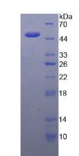 Active Interleukin 21 (IL21)