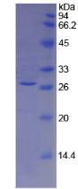 Active Tissue Factor Pathway Inhibitor 2 (TFPI2)