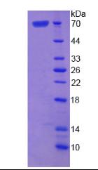 Active Asporin (ASPN)