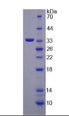 Active Glucosidase Alpha, Neutral AB (GaNAB)