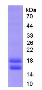 Active Cytochrome P450 1B1 (CYP1B1)