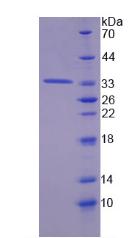 Active Tyrosine Aminotransferase (TAT)