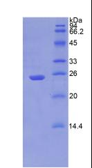 Active Puromycin Sensitive Aminopeptidase (PSA)