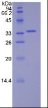 Active Spleen Tyrosine Kinase (SYK)