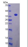 Active Sirtuin 4 (SIRT4)