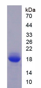 Active Fibronectin Type III Domain Containing Protein 5 (FNDC5)