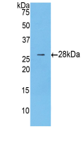 Anti-Catenin Beta 1 (CTNNb1) Polyclonal Antibody