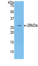 Anti-Catenin Beta 1 (CTNNb1) Monoclonal Antibody