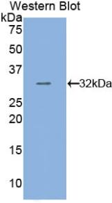 Anti-Tubulin Beta (TUBb) Polyclonal Antibody