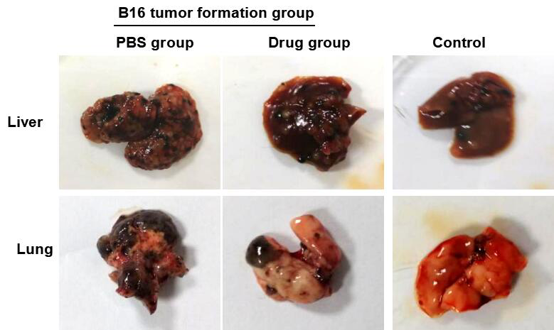 Mouse Model for Tumor Transplantation (TT)