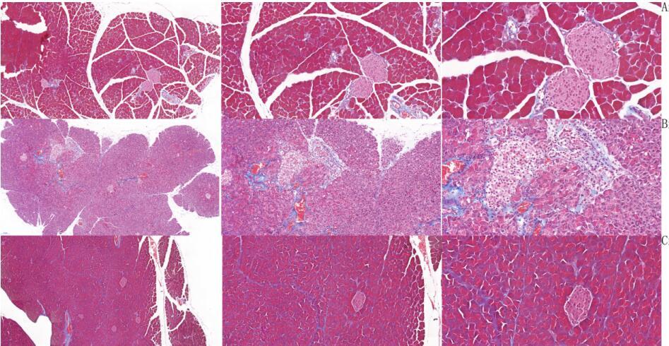Mouse Model for Acute Pancreatitis (AP)