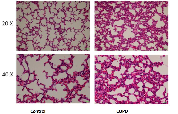 Mouse Model for Chronic Obstructive Pulmonary Disease (COPD)