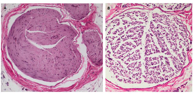 Rat Model for Sciatic Nerve Injury (SNI)