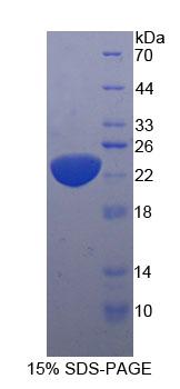 Eukaryotic Interleukin 11 (IL11)