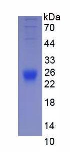 Eukaryotic Interleukin 2 (IL2)