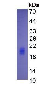 Eukaryotic Interleukin 5 (IL5)