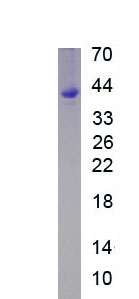Eukaryotic Monocyte Chemotactic Protein 2 (MCP2)