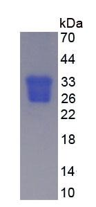 Eukaryotic Oncostatin M (OSM)