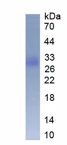 Eukaryotic Superoxide Dismutase 3, Extracellular (SOD3)