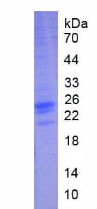 Eukaryotic Interferon Alpha 2 (IFNa2)