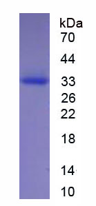 Eukaryotic Elastase 2, Neutrophil (ELA2)