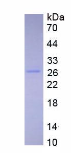 Eukaryotic Interleukin 27 (IL27)