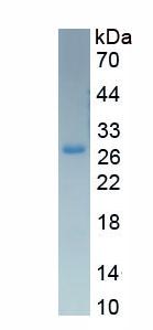 Eukaryotic Sex Hormone Binding Globulin (SHBG)