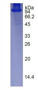 Eukaryotic Diamine Oxidase (DAO)
