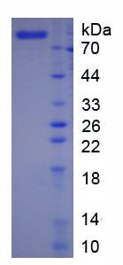 Eukaryotic Coagulation Factor XII (F12)