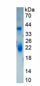 Eukaryotic Thrombin/Antithrombin Complex (TAT)