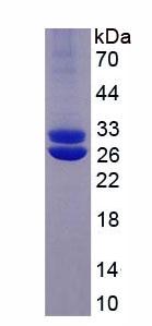 Eukaryotic Prolactin (PRL)