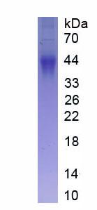 Eukaryotic Fc Fragment Of IgG Low Affinity IIIb Receptor (FcgR3B)