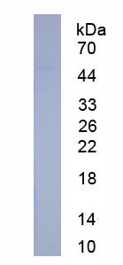 Eukaryotic Serpin B3 (SERPINB3)