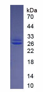 Eukaryotic Fibroblast Growth Factor 21 (FGF21)