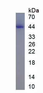 Eukaryotic T-Cell Surface Glycoprotein CD3 Epsilon (CD3e)