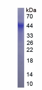 Eukaryotic Hepatitis A Virus Cellular Receptor 2 (HAVCR2)