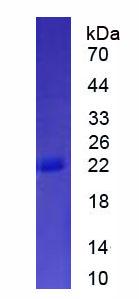 Eukaryotic Interferon Alpha 11 (IFNa11)