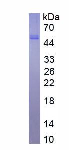 Eukaryotic PAI-1/tPA Complex (tPA/PAI1)