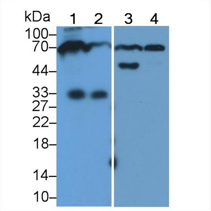 HRP-Linked Polyclonal Antibody to Immunoglobulin M (IgM)