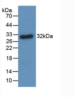 Monoclonal Antibody to Brain Derived Neurotrophic Factor (BDNF)