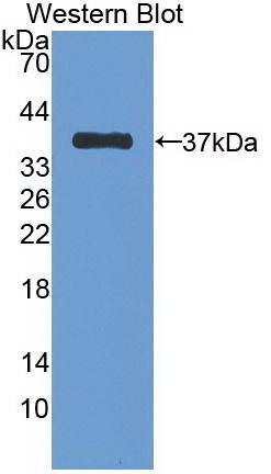 Monoclonal Antibody to Cadherin, Epithelial (CDHE)