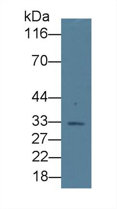 Monoclonal Antibody to Erythropoietin (EPO)