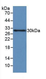 Monoclonal Antibody to Insulin Like Growth Factor Binding Protein 1 (IGFBP1)