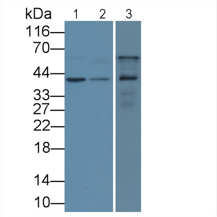 Monoclonal Antibody to Insulin Like Growth Factor Binding Protein 3 (IGFBP3)