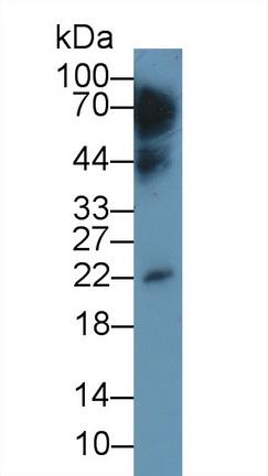 Monoclonal Antibody to Interleukin 10 (IL10)