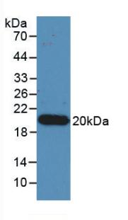 Monoclonal Antibody to Interleukin 17 (IL17)
