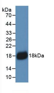 Monoclonal Antibody to Interleukin 18 (IL18)