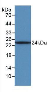 Monoclonal Antibody to Interleukin 6 (IL6)