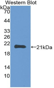 Monoclonal Antibody to Matrix Metalloproteinase 3 (MMP3)