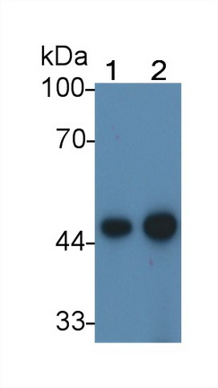 Monoclonal Antibody to Creatine Kinase, Muscle (CKM)